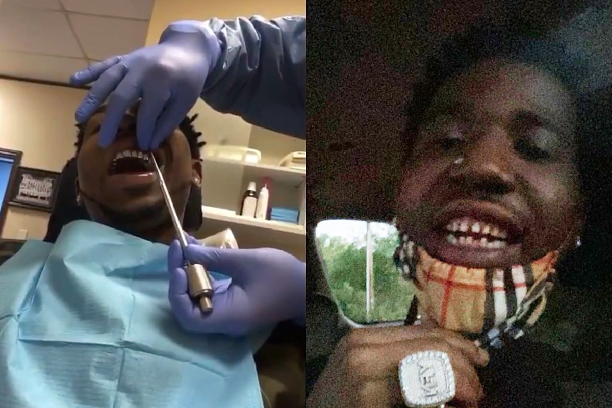 YFN Lucci Removes Permanent Grills and Shocks the Internet With His Real Teeth
